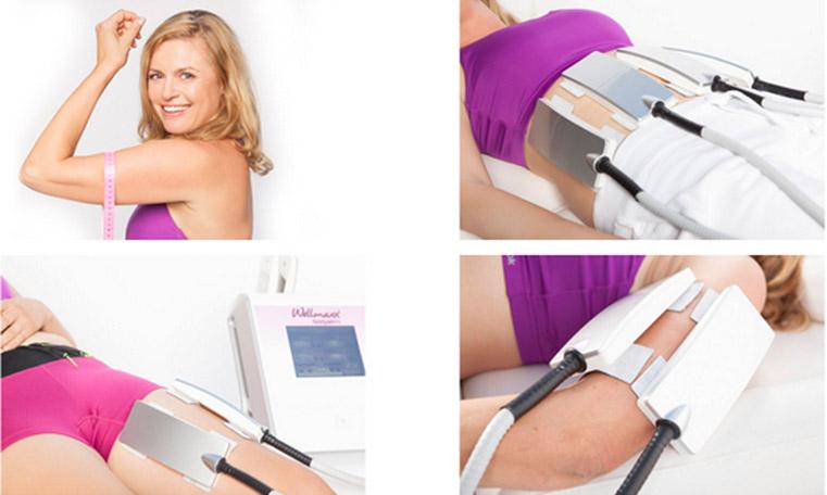 Gewichtsreduktion mit WELLMAXX